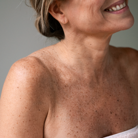Mature Skin (17)